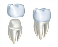 same-day-dental-crown